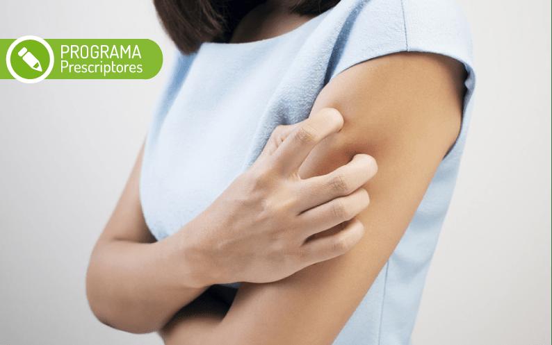 Tratar la psoriasis tipo gota