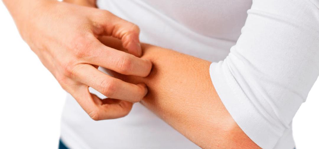 Alergias de la piel que encontramos comúnmente
