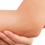 BALCANN para la dermatitis