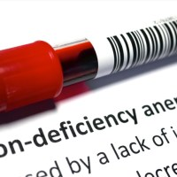 IRON DEFICIENCY IN CHILDREN