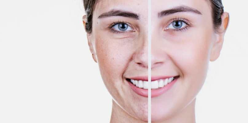 using niacinamide by Iyurved