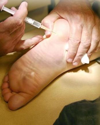 L'injection n'est pas douloureuse. Les effets du produit par contre c'est une autre histoire