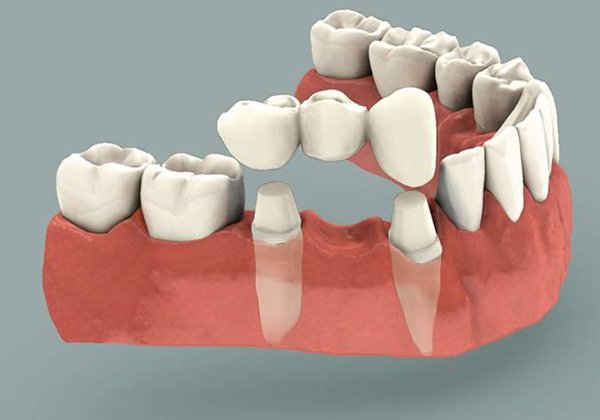 Dental bridges: How to care for them