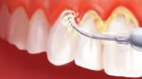Menjaga Agar Gigi Tidak Mudah Terbentuk Karang Gigi
