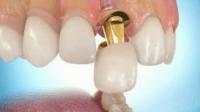 Implan Gigi Untuk Menggantikan Gigi yang Hilang