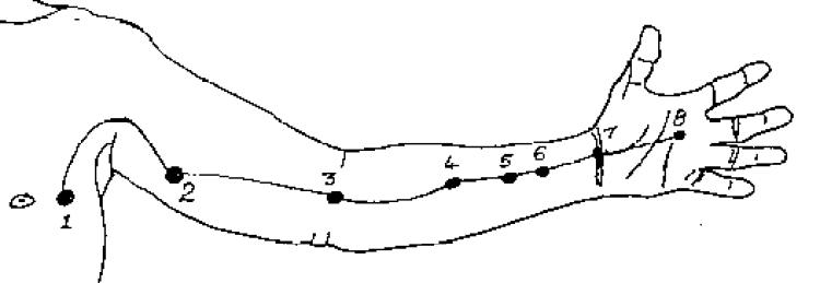 The Pressure Point Pericardium 2
