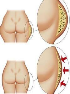 rimedi contro la cellulite e pelle a buccia d'arancia con i prodotti Fitline