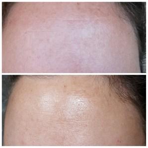 anti aging skin care wrinkle cream