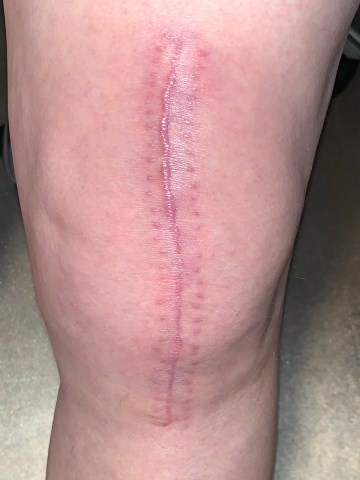 6 week knee photo