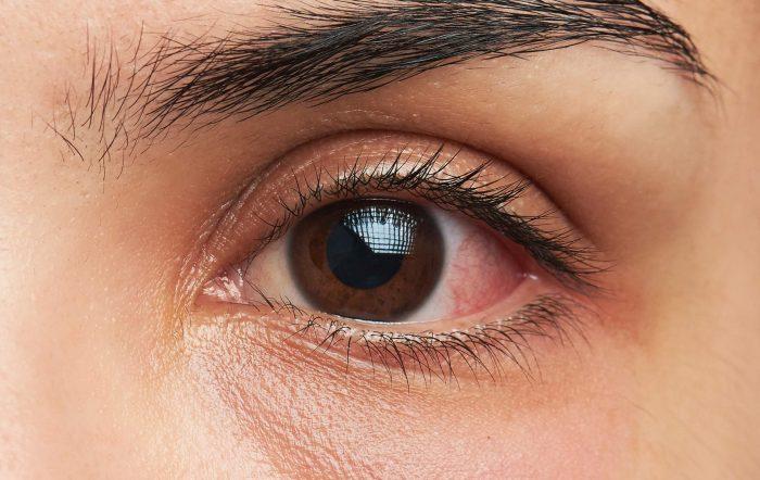 Pembengkakan mata