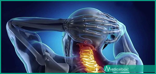cervicale sintomi