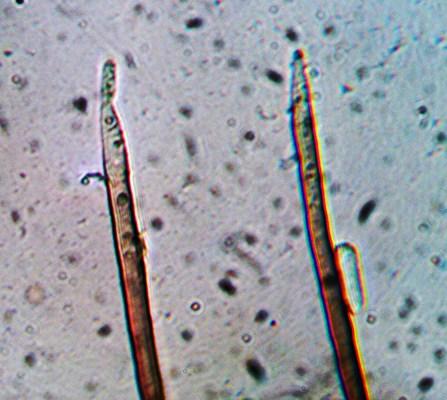 Conidiophores de Cylindrotrichum sp. Notez la présence d'une jeune conidie sur celui de gauche