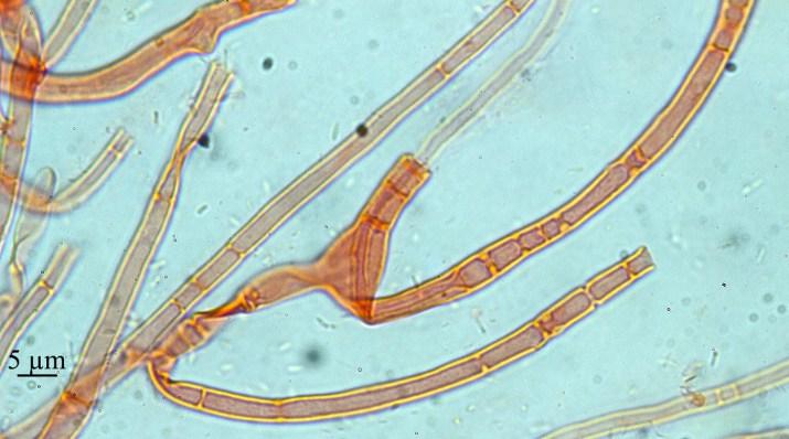 Fig.4 Sebacina concrescens, quelques septa, certains sont complets, d'autres en voie de dégradation. La dégradation des septa permet le transport rapide des matériaux nécessaires à la formation des basidiomes.