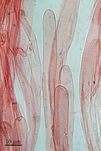 Fig. 9: Acrophysalides. Amanita citrina, stipe. © Guy Fortin et Johanne Paquin, 2015