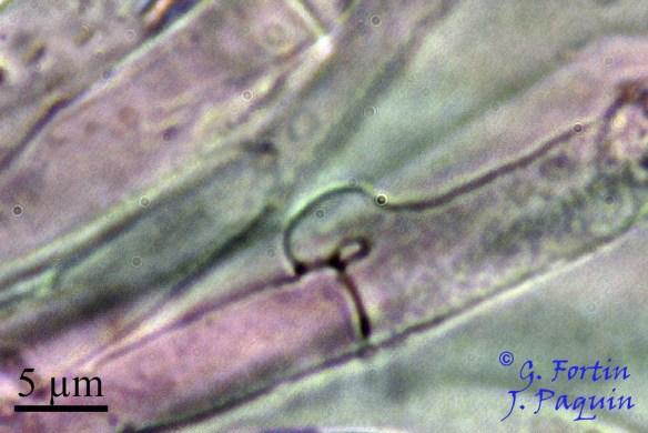 Fig. 12: boucle médaillon au septum d'une hyphe génératrice