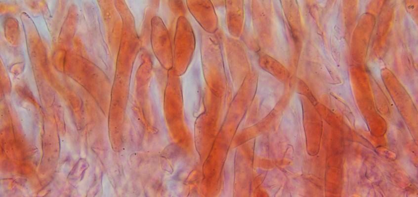 Étude microscopique de Boletus chippewaensis, le porcini québécois