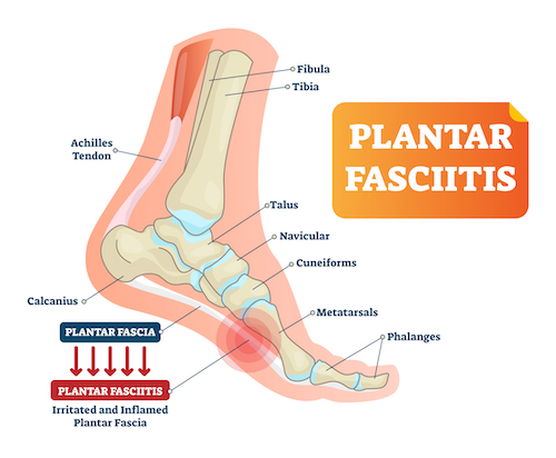 Plantar fasciitis explanation graphic