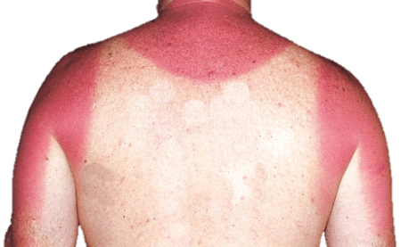 Boat safety: sunburn