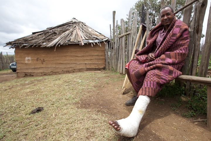 Masai teacher injured by an elephant | Photograph by Nelson Guda © 2019