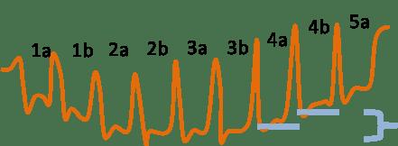 8-Obsvervation THb en réponse à la charge du test moxy 5-1-5