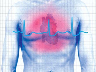 Αποτέλεσμα εικόνας για επεμβατικος¨ καρδιολογος.