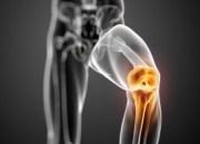 Τι προκαλεί την αρθρίτιδα γόνατος; Συμπτώματα και θεραπεία