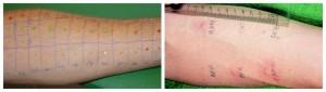 Με τις με δερματικές δοκιμασίες (skin pricktests) ελέγχονται ταυτόχρονα δεκάδες αλλεργιογόνα και εντοπίζουμε σε ποιο/α είναι κάποιος αλλεργικός