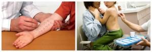 Τα τεστ αλλεργίας (skinpricktests) είναι εύκολα ανεκτά από τα παιδιά και δεν πονάνε