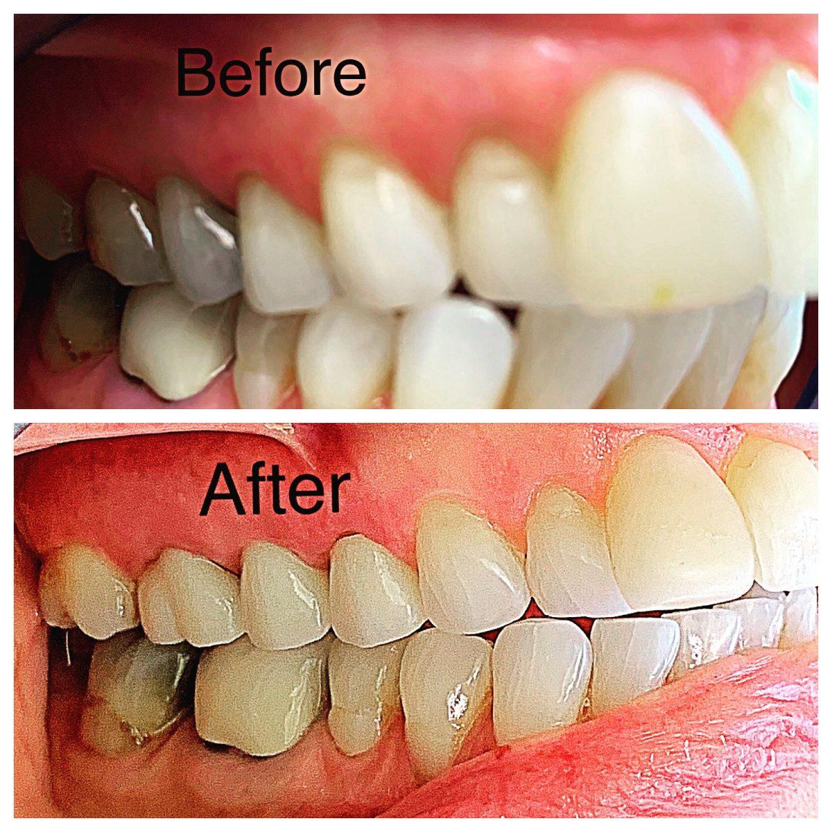 Use of non invasive Porcelain and Bonding one visit dental Appointment by Dr Benjamin Ganjian benganjian nextgenerationdentalnbspNext Generation Dental October