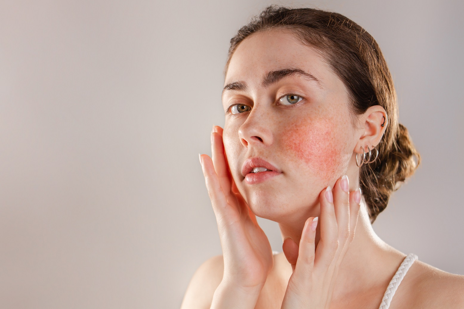 Why Do Many Women Develop Rosacea During Pregnancy?