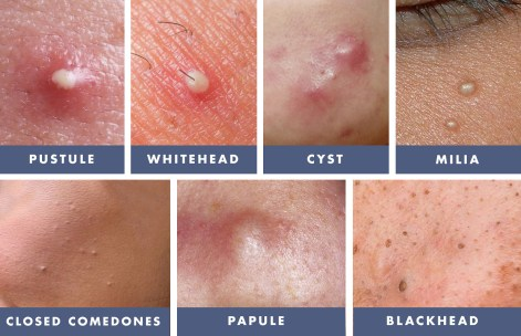 Image result for comedo pore causes pictures