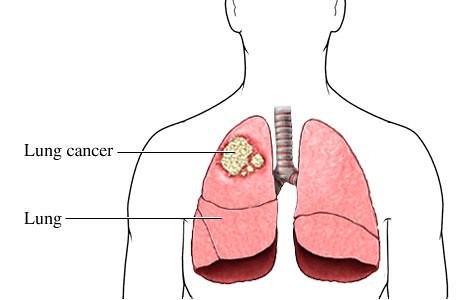 Phơi nhiễm Radon có thể gây ung thư phổi (Ảnh: Sưu tầm)