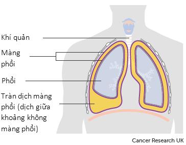 Dịch trong phổi hay trong khoang bụng