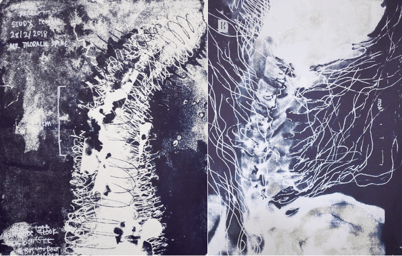 Two serigraphs side by side of scanned black and white spinal forms centred against a blue black background. White netted lines overlay, wrap and extend outside the forms. Handwritten clinical text frame the images on the top left corner. On the bottom corner are words scratched out indistinctly.