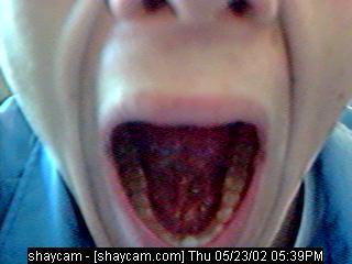 yawnstyle.jpg