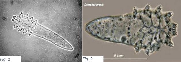 demodex folliculorum brevis