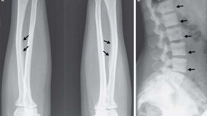 Cause-of-Bone-Disease