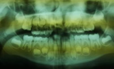 X-Ray of Hope's teeth