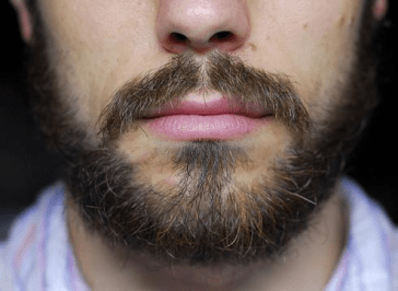 Image for Beard Acne problem