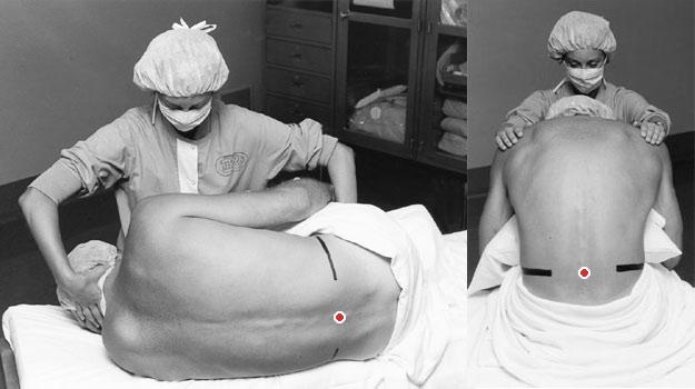 Варианты положения пациента для выполнения спинальной анестезии — лежа на боку и сидя. Черные линии условно показывают уровень, на котором будет выполнена пункция, а красная точка — само место пункции. Оригиналы изображений взяты здесь.