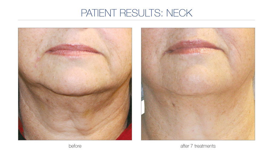 Lift and Firm neck treatment. Radio Frequency treatment after 7 treatments