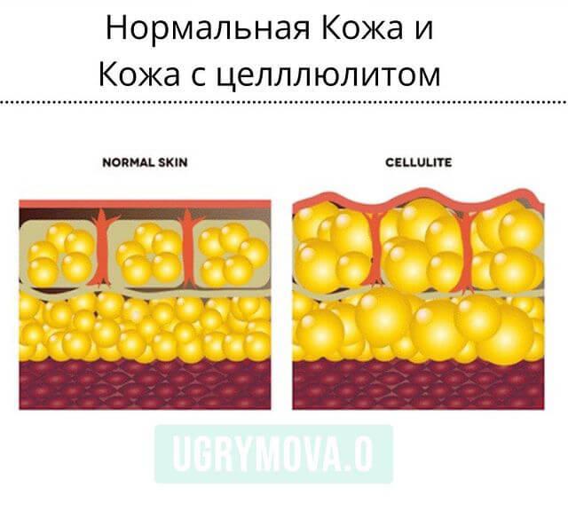 нормальная кожа и кожа с целлюлитом