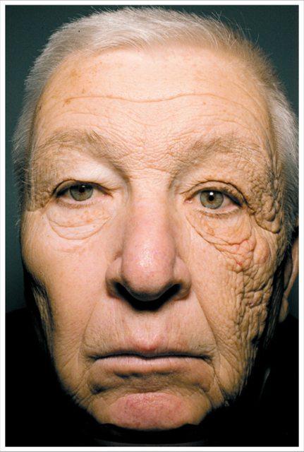 UV and Skin Damage