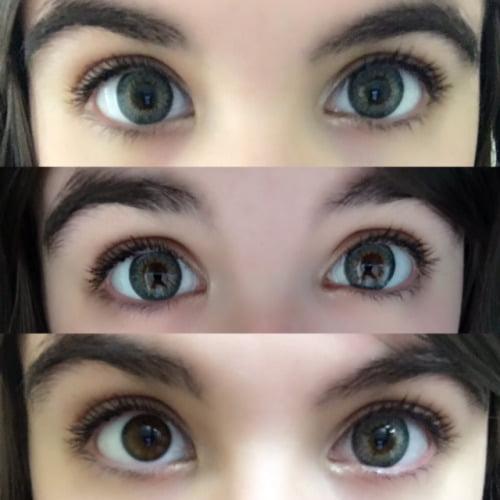 puffy grey eyes