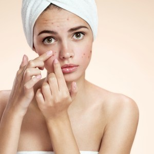 Natural Remedies for Eliminating Blackheads