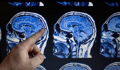 Marihuana Substanz entfernt giftige Alzheimer-Proteine