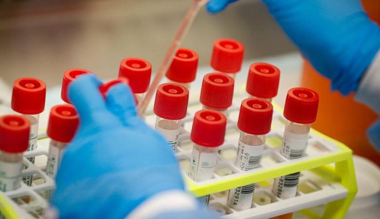 how corona virus is tested