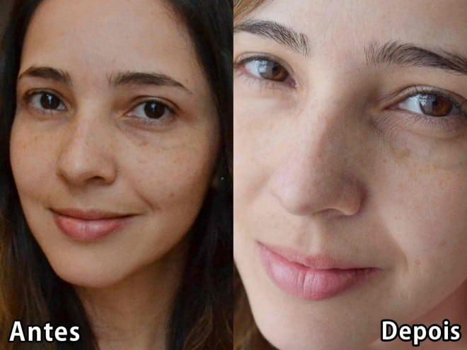post sobre tratamento dermatologista na clinica pele4all