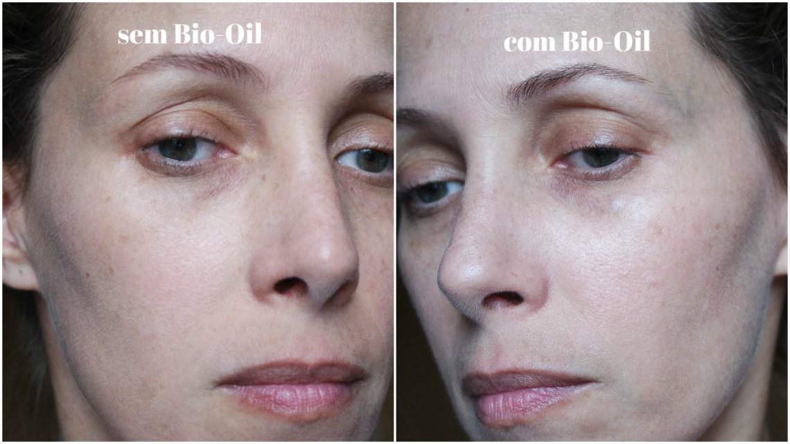bio oil rosto kutiz blog da ana