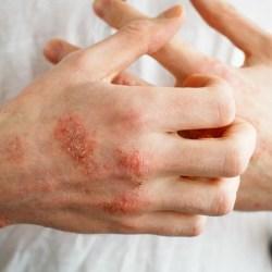 ¿Cómo aliviar el eczema?